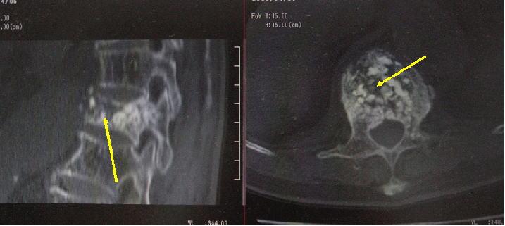 骨セメント注入後のCT画像