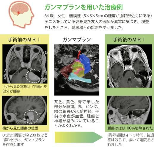 ガンマプランを用いた治療例