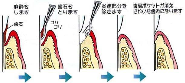 shishu1