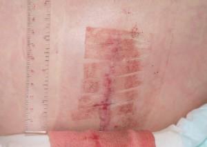 手術後の皮切部