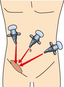 鼠径ヘルニア専門外来の腹腔鏡下手術
