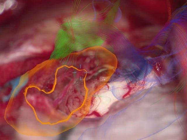 脳神経外科手術用顕微鏡 KINEVO 900(ZEISS社製)