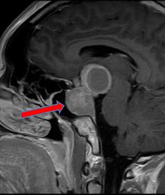 下垂体腫瘍のMRI画像